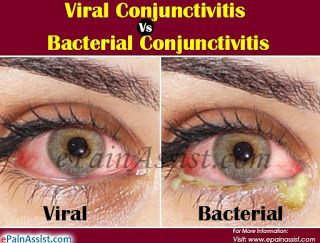 How Long Does It Take To Get Rid Of Conjunctivitis