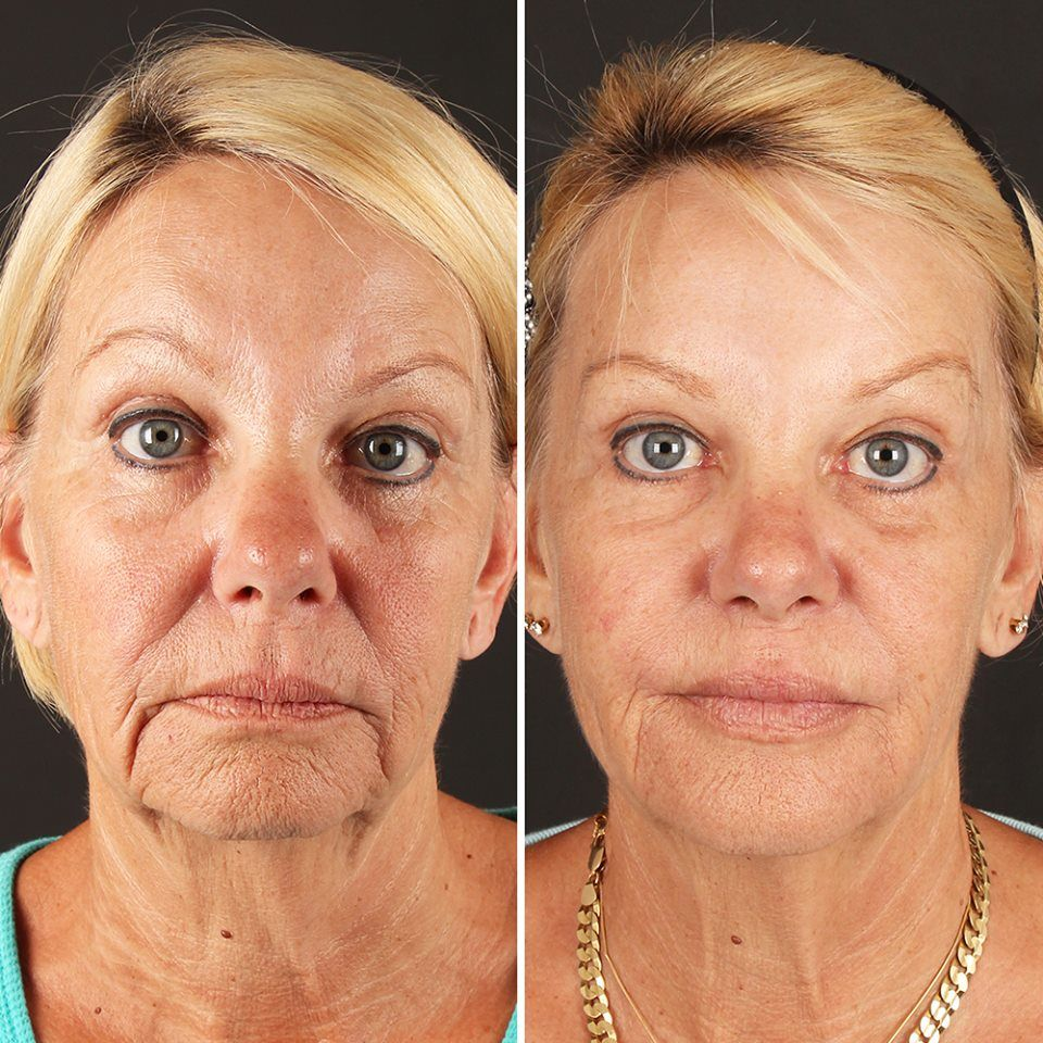 After 2 treatments of Fractora skin resurfacing and 4 cc's