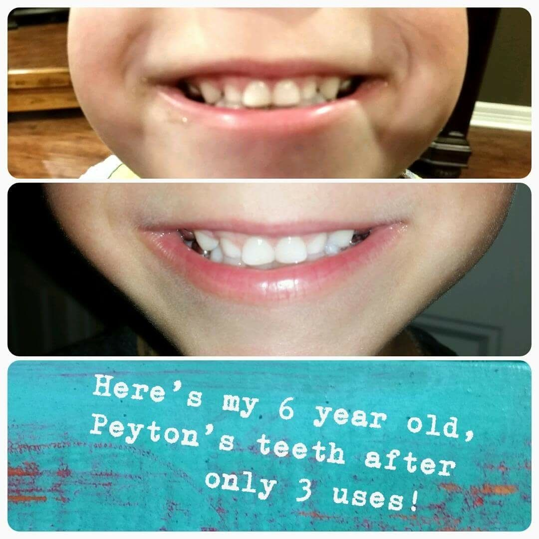 Best Whitening Toothpaste >> The Best Whitening Toothpaste No Peroxide No Bleach No Sugar Safe