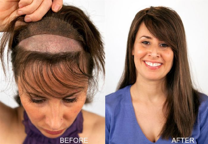 This Is Amazing Hair Loss Treatment For Females Wow