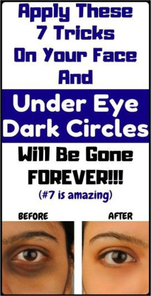 7 Remedies How To Remove Under Eye Dark Circles   Dark ...