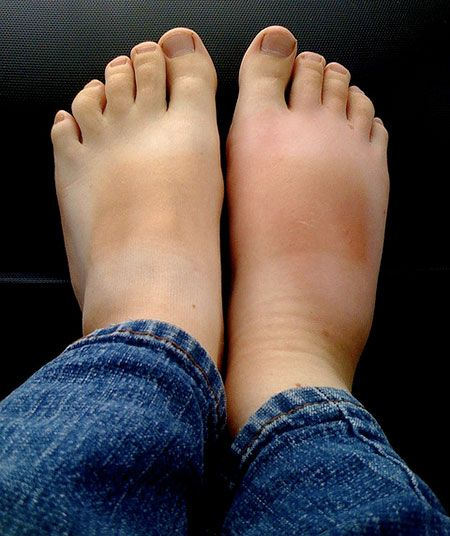 how to help bad circulation in feet