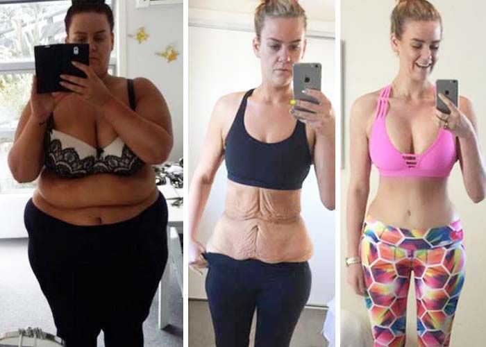 Top 10 Tips Before and After Gastric Bypass Surgery ...