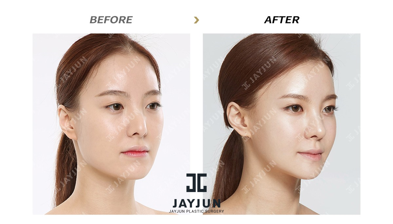 Korean Face Contouring Makeup Korea Facial Contouring Korea Facial  Contouring Surgery Before And After Korea Facial