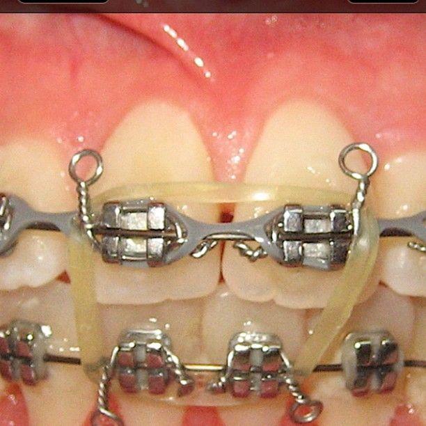 Aquí Hay De Todo Ligaduras Metálicas Ligaduras Elásticas Ligadura Elástica Elastomérica En Cadena Y Liga Elás Ortodoncia Odontología Brackets Dentales