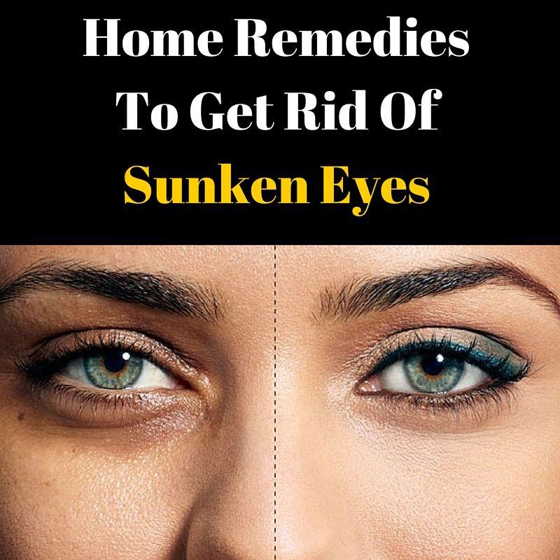 Home remedies to get rid of sunken eyes in 2020 sunken
