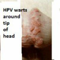 Warts on head of penis, porn chicks ine heels