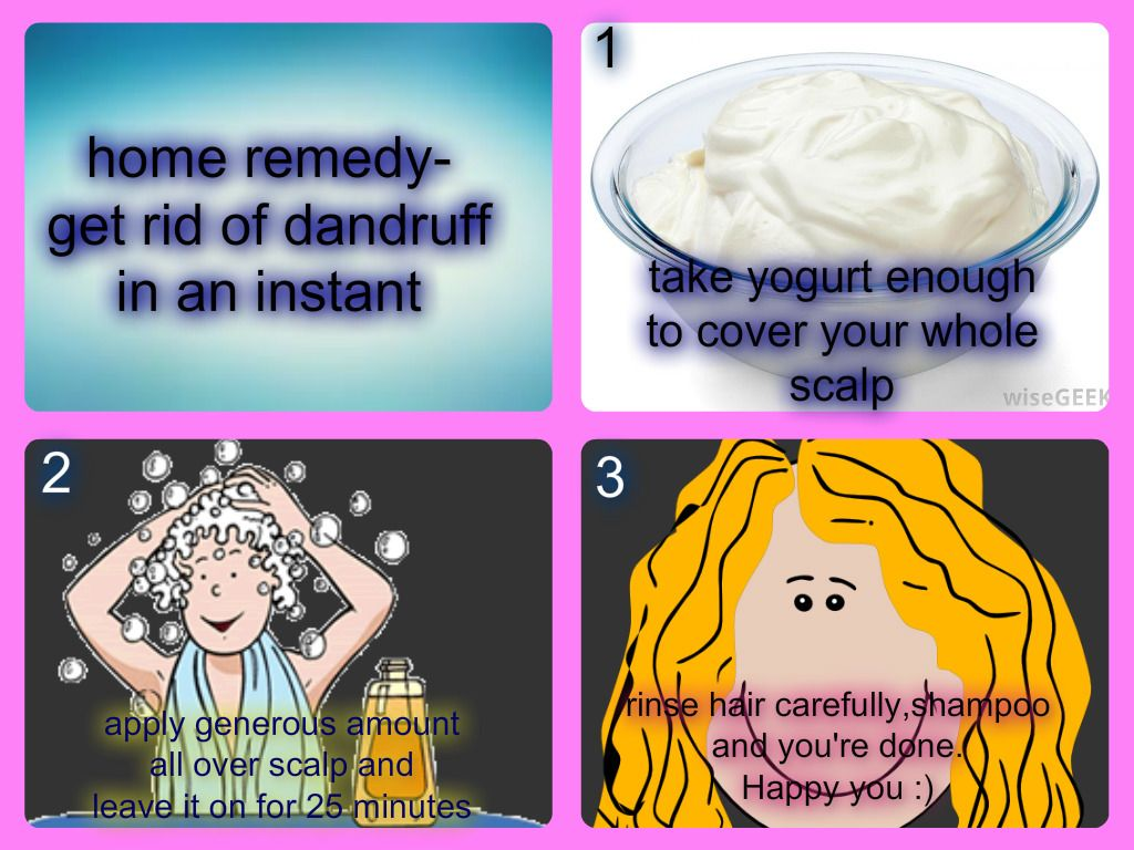 Get rid of dandruffhome remedy home remedies for