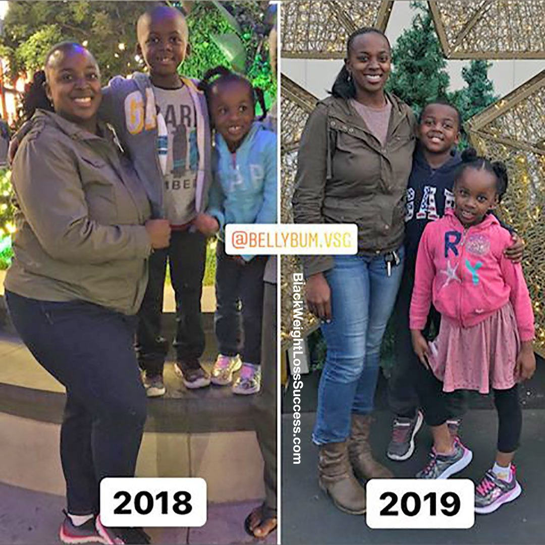 Pin On Before And After Weight Loss Stories