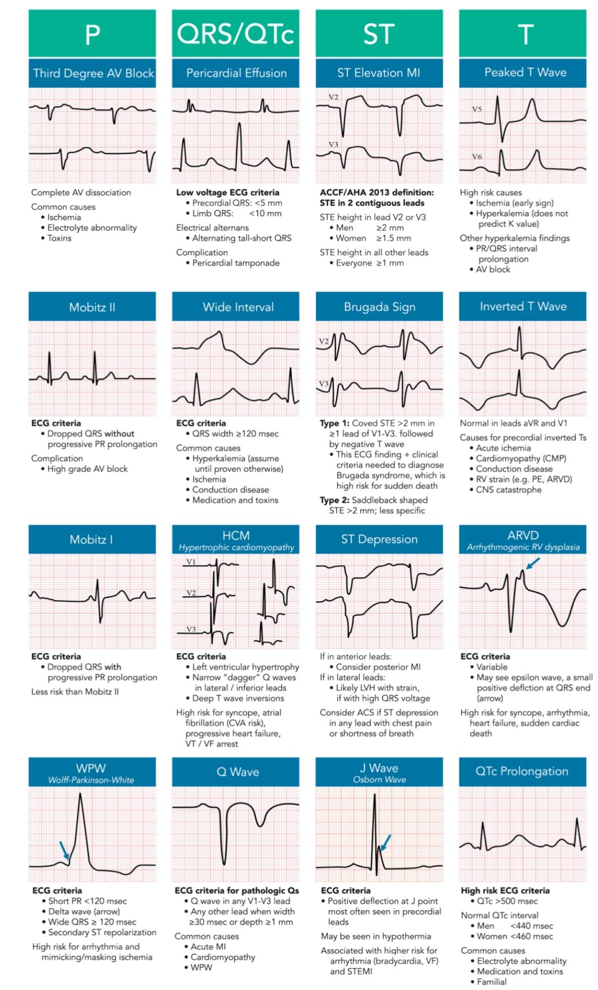Pin By Carol Sise On Fnp Cardiovascular Pinterest Cardiology Invention Story Of Electrocardiography Ecg Willem Einthoven Medical And Emergency Medicine