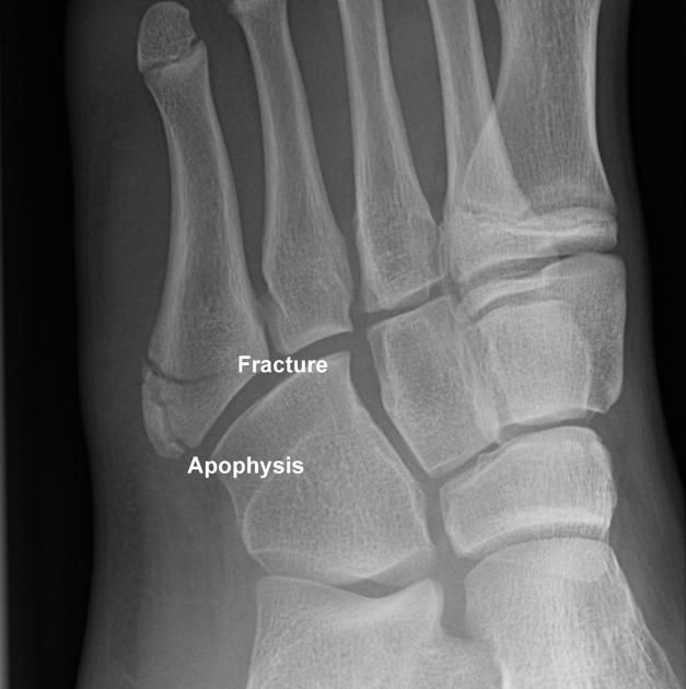 Base Of 5th Metatarsal Fracture And Apophysis This Case Illustrates The Difference In The Appearance Of An Avu Jones Fracture Radiology Ultrasound Technician