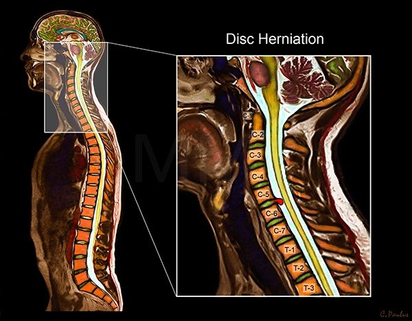 Color mri cervical spine anatomy disc herniation body scan color mri cervical spine anatomy disc herniation ccuart Image collections