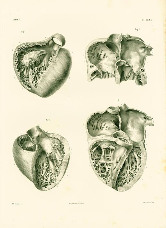 Authentic Large size lithograph. 180 years old. Heart Anatomy Art ...