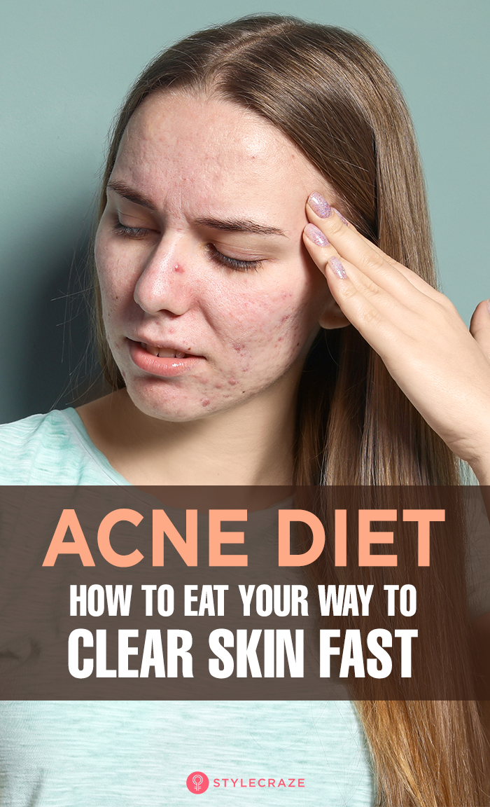 The Anti-Acne Diet: How To Eat Your Way To Clear Skin #healthyskin