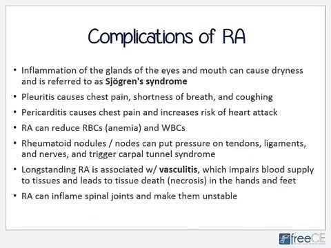 Rheumatoid Arthritis Primarily An Autoimmune Disease Watch Video Here Http Arthritisremed Arthritis Prevent Arthritis What Causes Rheumatoid Arthritis