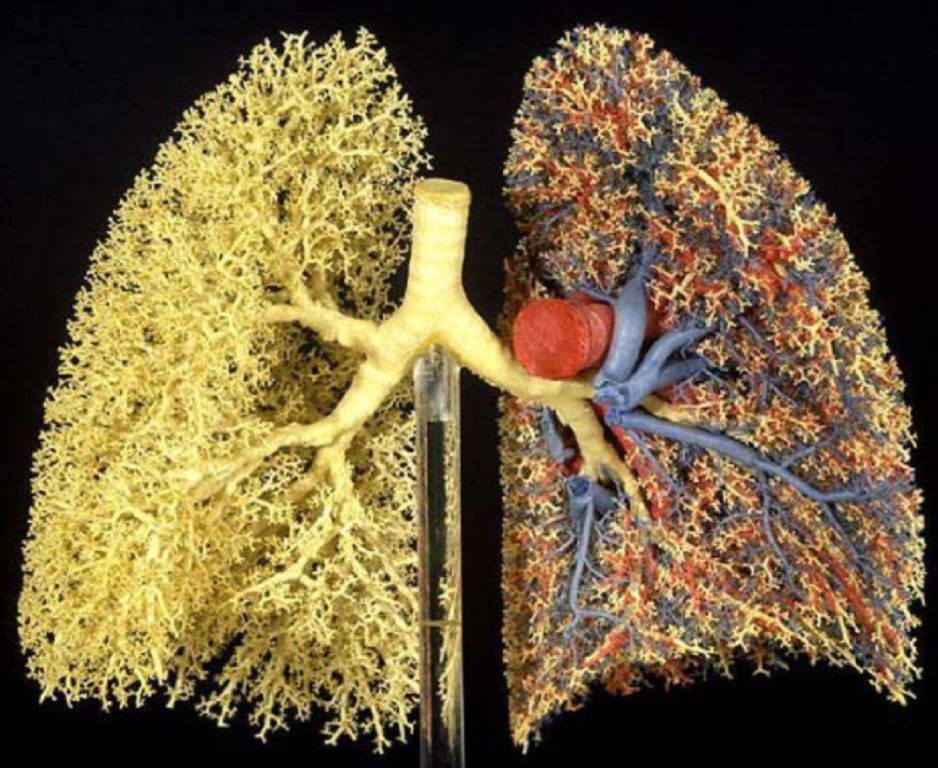 alveoli real - Google Search | Lung | Pinterest | Lungs
