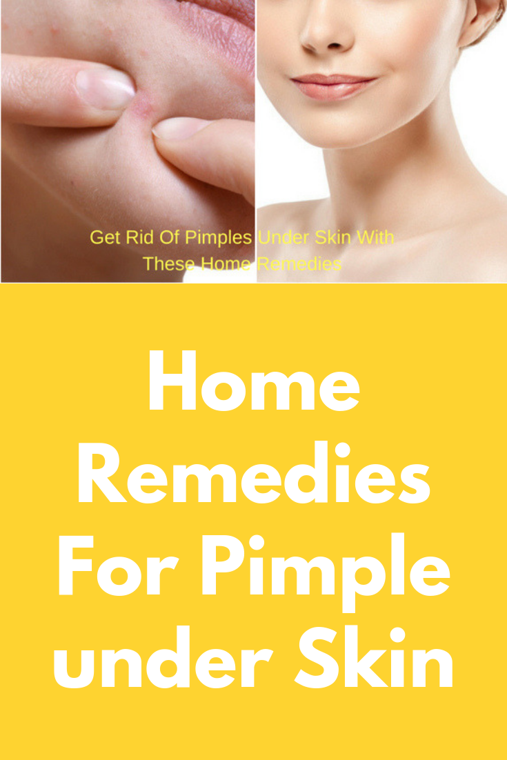 Home Remedies For Pimple under Skin Pimples under the skin ...