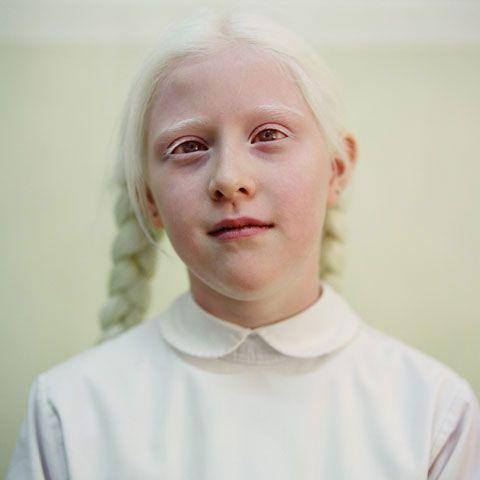 Portrait On Tumblr Albino Girl Albino Human Albinism