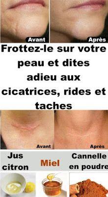 Frottez-le sur toutes les cicatrices, rides ou taches que vous avez sur votre peau et profitez