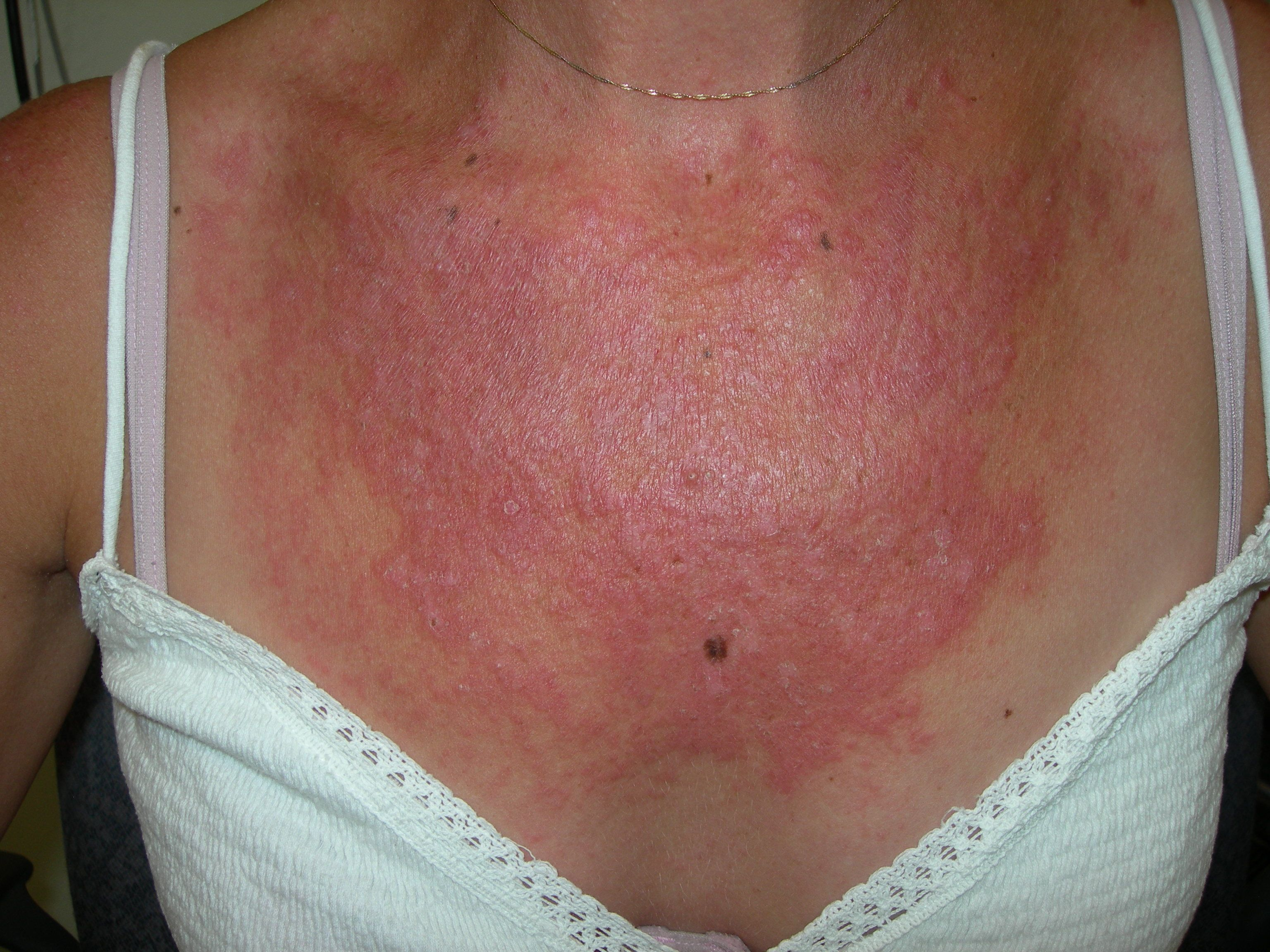 facial redness caused by autoimmune dysfunction theorize