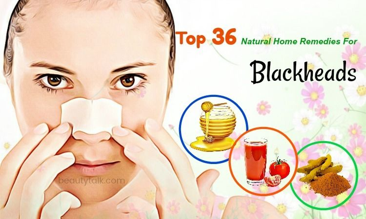 Top 36 Natural Home Remedies For Blackheads On Face And Nose