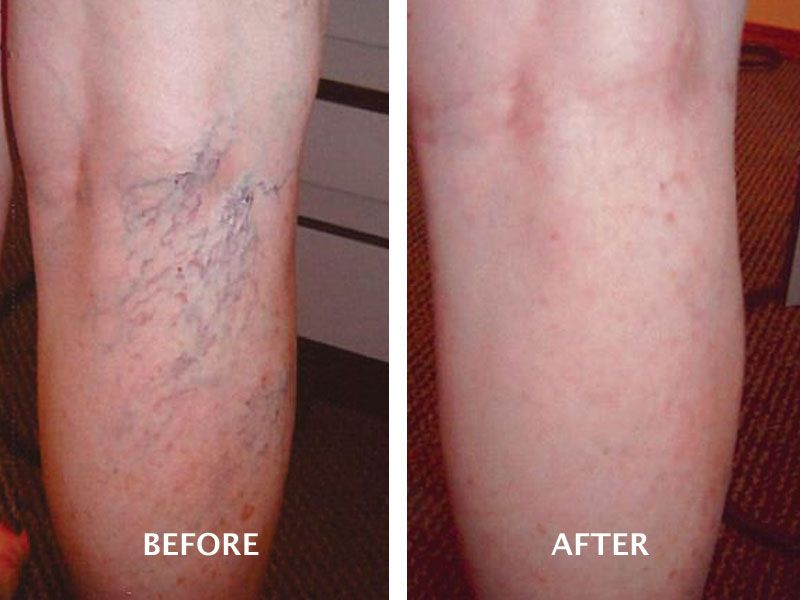 spider veins injection treatment