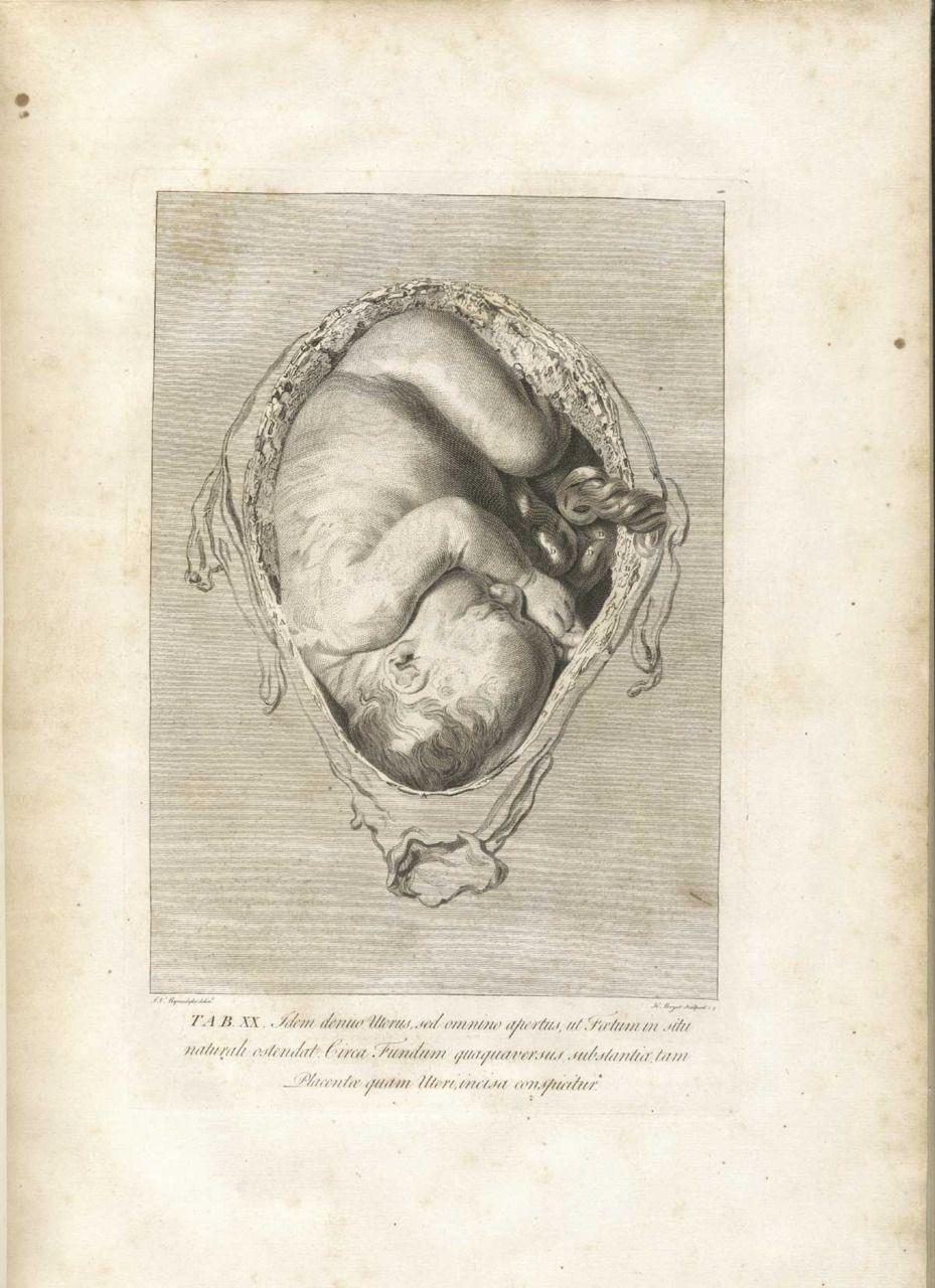 gravidi