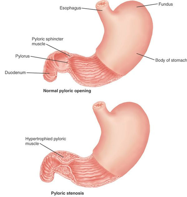 Pyloric Stenosis - thickening of pyloric sphincter, narrowing from ...
