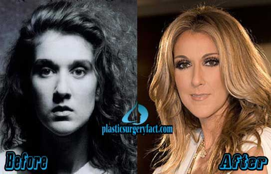 Celine Dion Plastic Surgery Before And After Pictures Plastic Surgery Pictures Plastic Surgery Facts Plastic Surgery