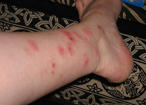 How To Get Rid Of Bed Bug Bites Is Not The Question To Be Answered Beauteous How To Get Rid Of Spiders In Bedroom