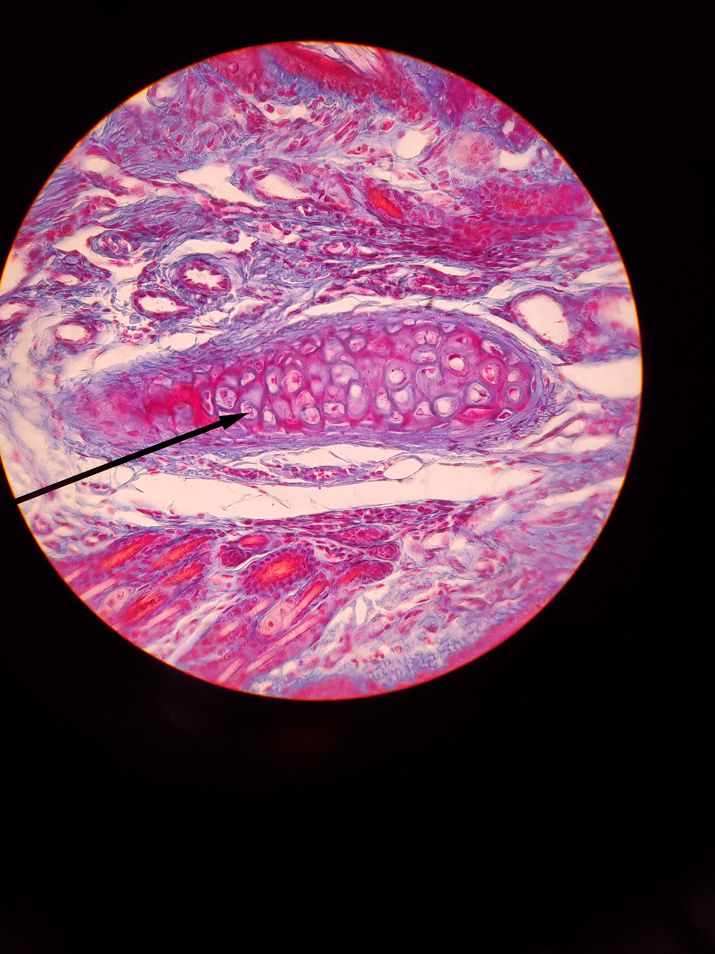 Elastic Cartilage With Images Cartilage Elastic Ear