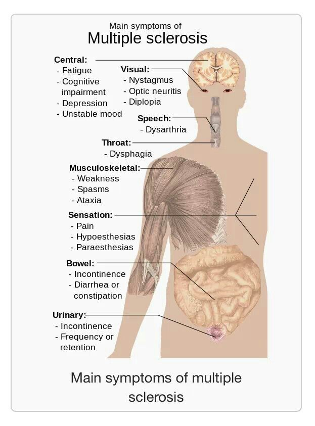 Symptoms of ms | causes, illnesses and health | Pinterest