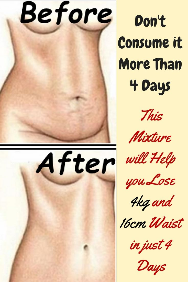 Weight loss alternate day fasting