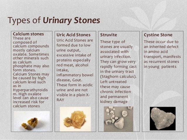 types of kidney stones - google search | kidney stones | pinterest, Human Body