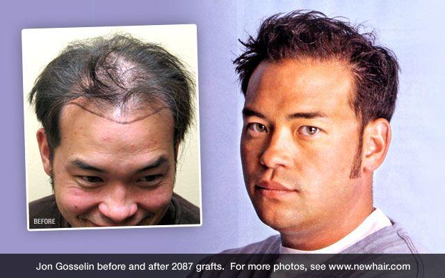 Hair Transplant Surgery | Europe Surgery