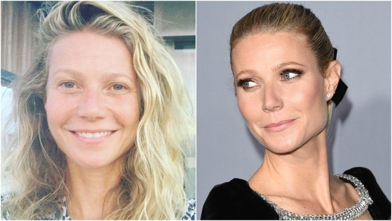 13 Celebs Who Are Unrecognizable After Plastic Surgery ...