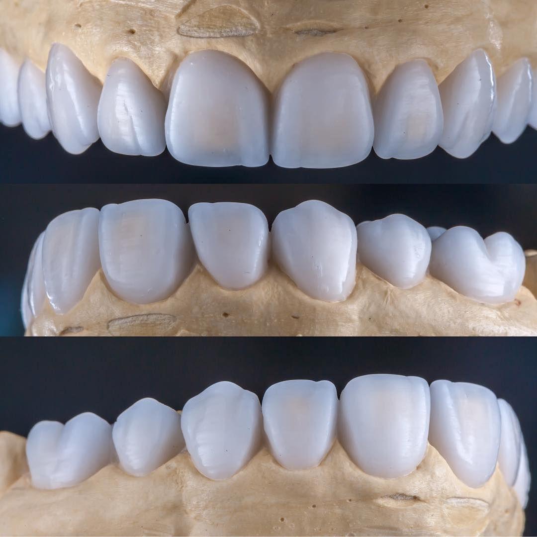 Pin de Sam Macfall en CDT | Pinterest | Dental, Odontología y ...