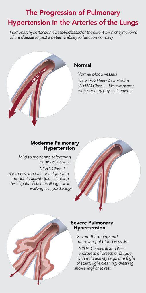 Pulmonary hypertension and breathlessness