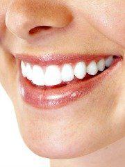 White smile trakice cena