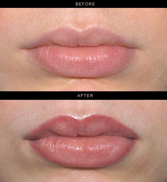 Lip liner tattoo healing time 4 0