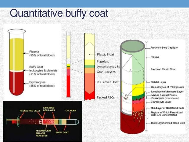 Quantitative Buffy Coat Analysis Found On Google From Slideshare