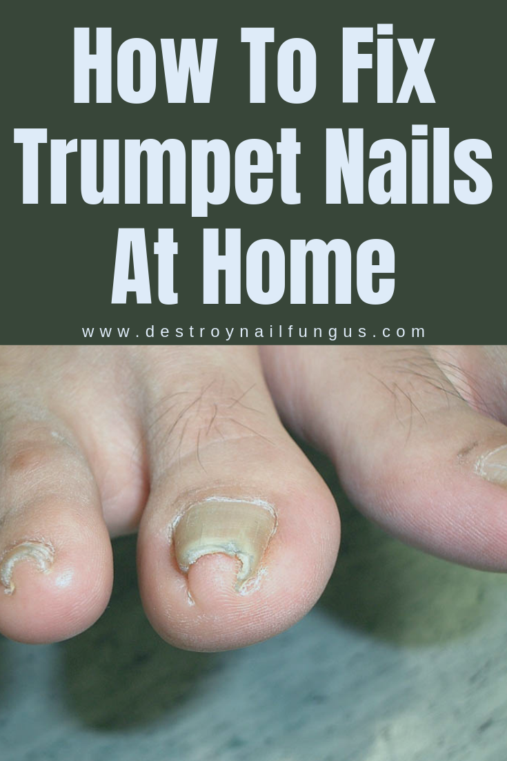 Everything You Need To Know About Pincer Toenails in 2020