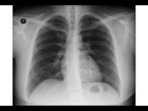 Pneumonia chest x-ray consolidating debt