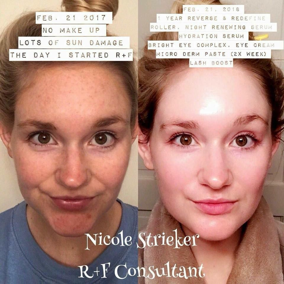 Spring And Summer Are Around The Corner Make Sure That You Are Prepared To Take Care Of Your Face With Rodan And Fi Sensitive Skin Care Rodan And Fields Rodan