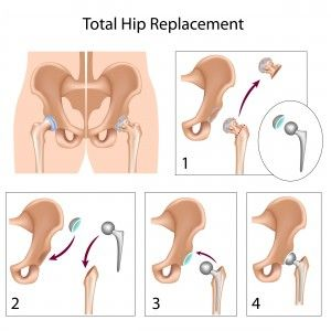 Pilates Total Hip Replacement Hip Replacement Surgery Total Hip Replacement Hip Replacement