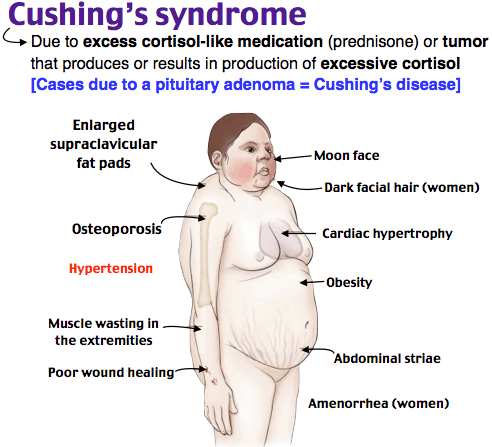 Cushing syndrome primary signs and symptoms o | Food Mixy | Endocrine  system nursing, Cushings syndrome, Medical