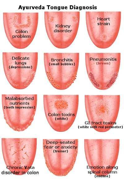 Tongue Health Diagnosis Lots Of Pinnable Charts The Whoot