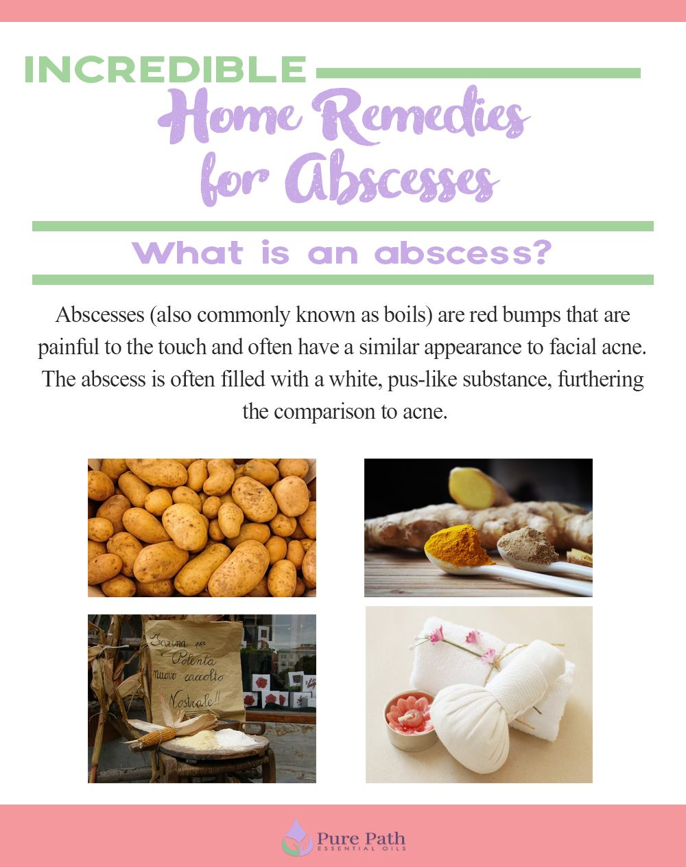 4 Incredible Home Remedies for Abscesses Home remedies