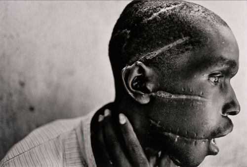 World Press Photo of the Year: 1994 James Nachtwey, USA, Magnum Photos for Time. Rwanda, June 1994. Hutu man mutilated by the Hutu 'Interahamwe' militia, who suspected him of sympathizing with the Tutsi rebels.
