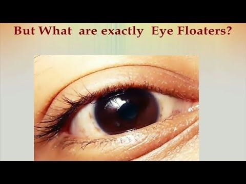 Eye Floaters How I Got Rid Of Them Health Miracle Nattokinase Eye Floaters Treatment Spots In Eyes Eye Floaters Cure
